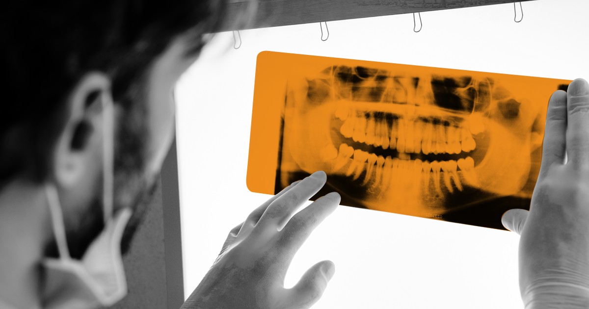 Image of NHS Dentist looking at an xray of teeth.