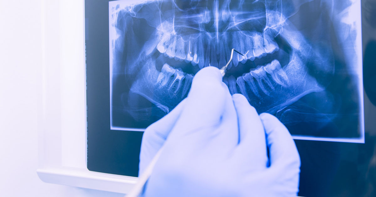 Image of dental xray being examined by an orthodontist.